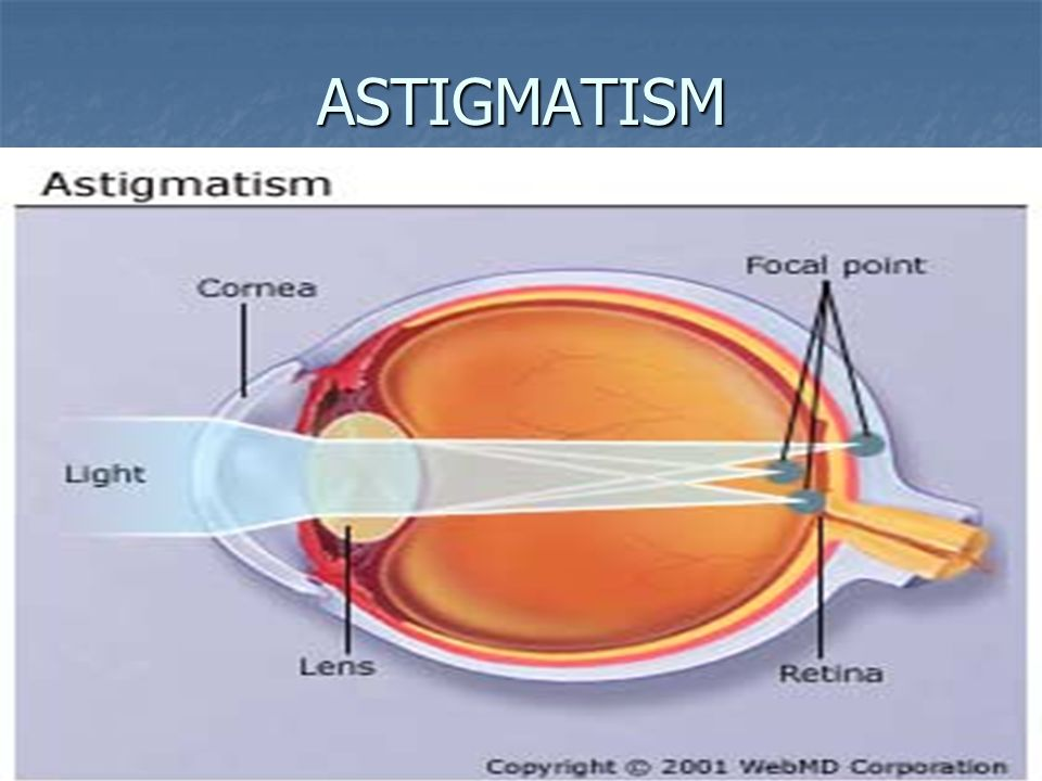 Astigmatism Test If you do not see all the lined squares, in the same black color, if you do see one or more squares grey, you then have an astigmatism.