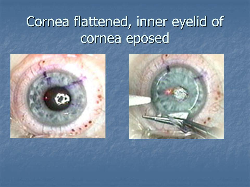 Cornea flattened, inner eyelid of cornea eposed