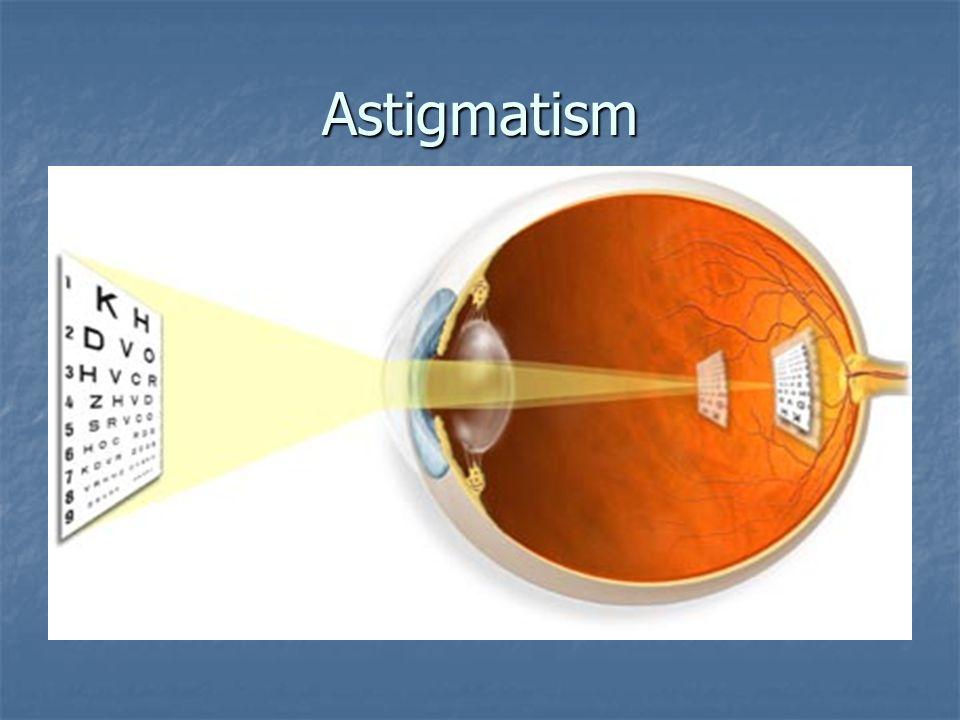 Astigmatism ASTIGMATISM MEANS THAT THE CORNEA IS OVAL, LIKE A FOOTBALL ASTIGMATISM MEANS THAT THE CORNEA IS OVAL, LIKE A FOOTBALL