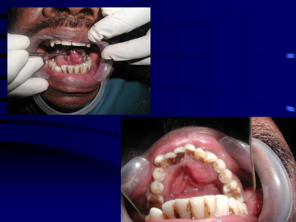 TREATMENT PLAN Wide excision (segmental mandibulectomy) .