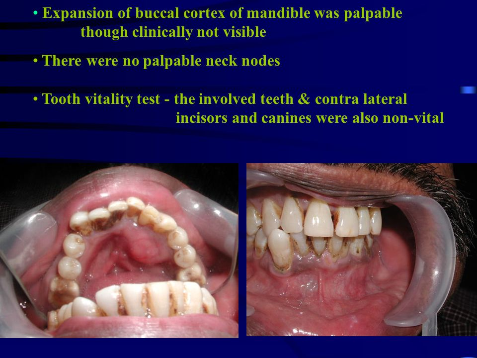 Expansion of buccal cortex of mandible was palpable though clinically not visible There were no palpable neck nodes Tooth vitality test - the involved teeth & contra lateral incisors and canines were also non-vital