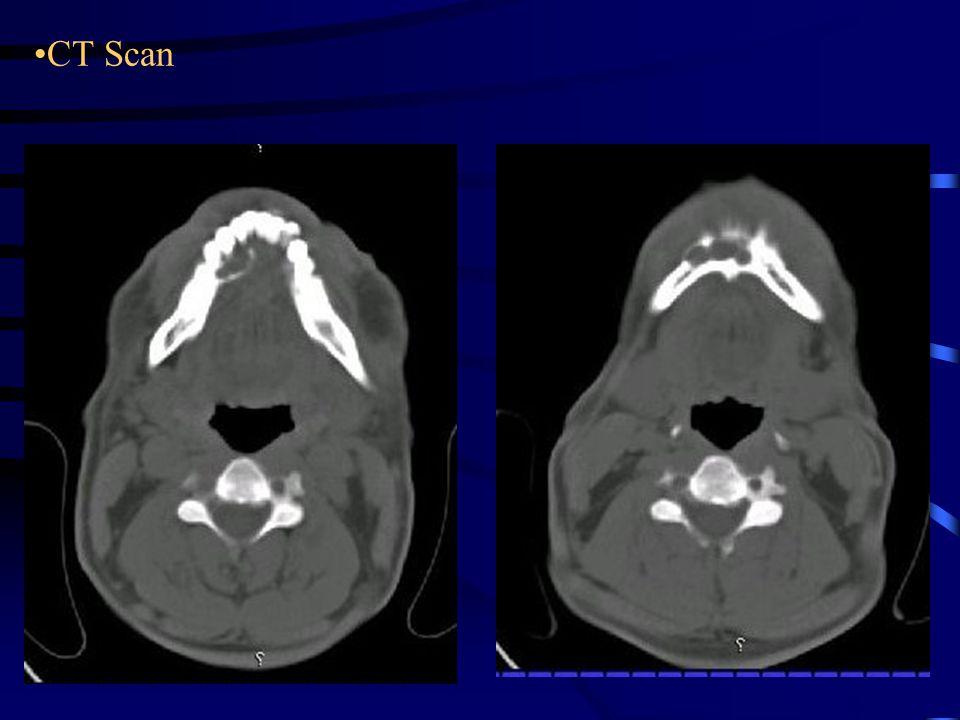 DIFFERENTIAL DIAGNOSIS Ameloblastoma Odontogenic keratocyst Solitary (traumatic) bone cyst