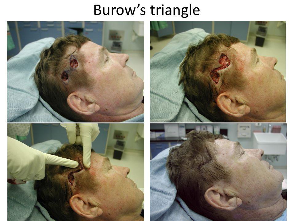 Burow's triangle