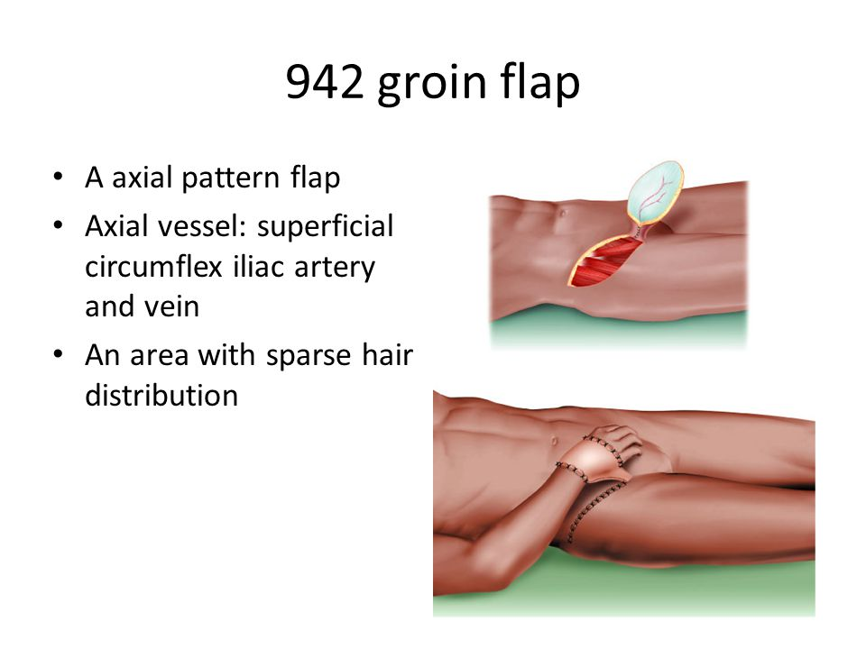942 groin flap A axial pattern flap Axial vessel: superficial circumflex iliac artery and vein An area with sparse hair distribution