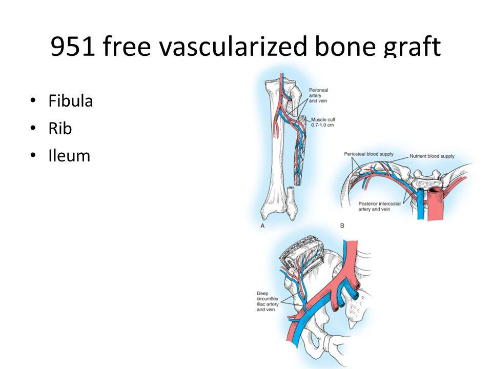 951 free vascularized bone graft Fibula Rib Ileum