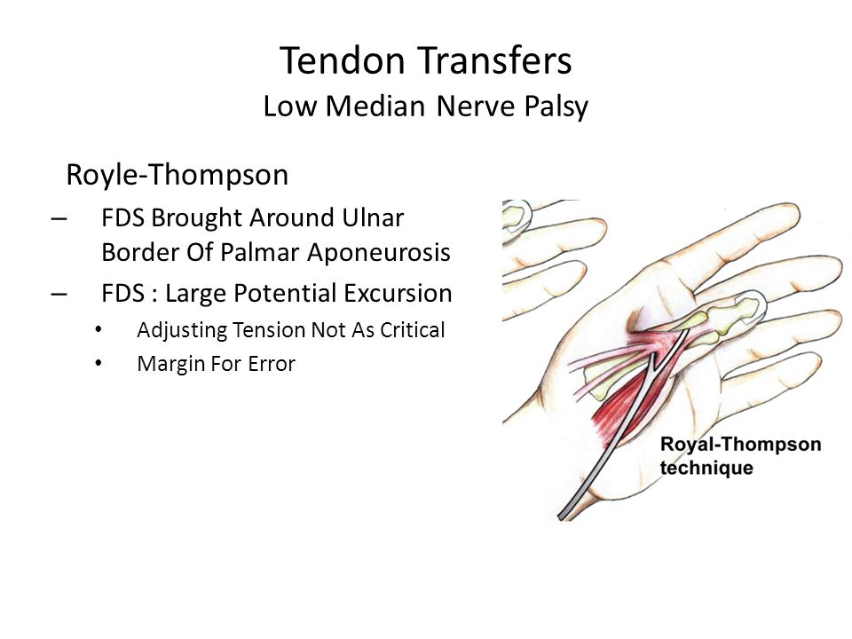 Tendon Transfers Low Median Nerve Palsy Royle-Thompson – FDS Brought Around Ulnar Border Of Palmar Aponeurosis – FDS : Large Potential Excursion Adjusting Tension Not As Critical Margin For Error