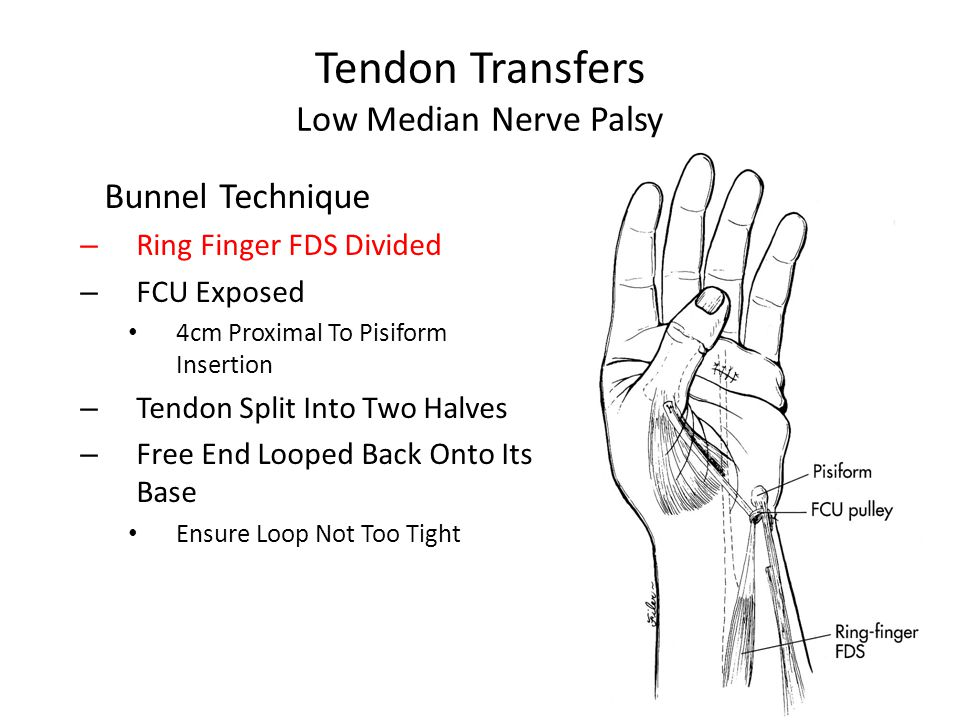 Tendon Transfers Low Median Nerve Palsy Bunnel Technique – Ring Finger FDS Divided – FCU Exposed 4cm Proximal To Pisiform Insertion – Tendon Split Into Two Halves – Free End Looped Back Onto Its Base Ensure Loop Not Too Tight