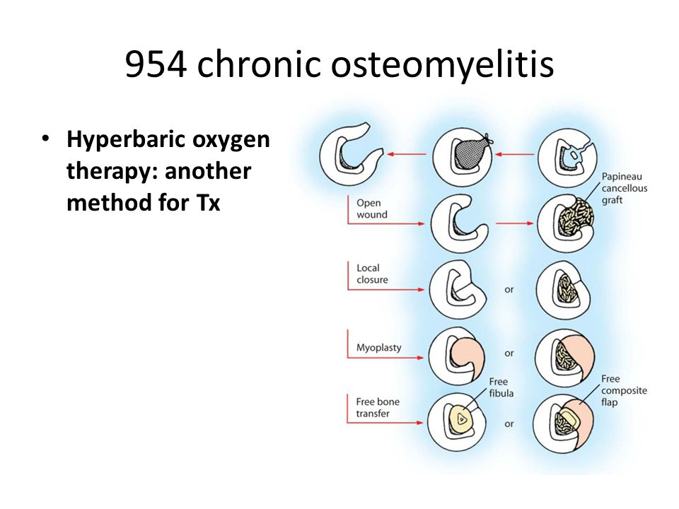 954 chronic osteomyelitis Hyperbaric oxygen therapy: another method for Tx