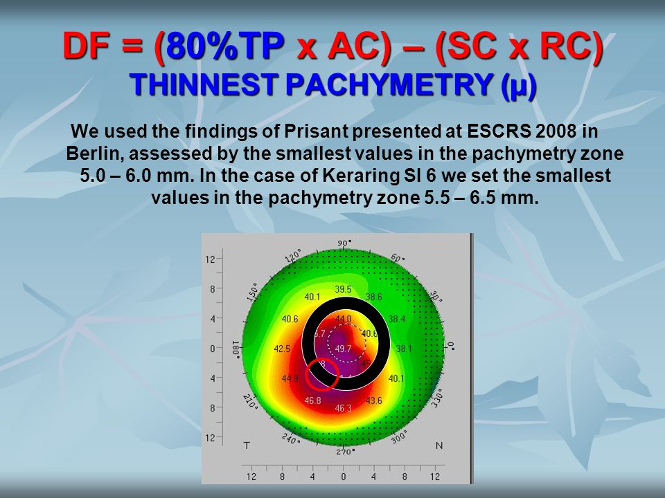 DF = (80%TP x AC) – (SC x RC) THINNEST PACHYMETRY (µ) We used the findings of Prisant presented at ESCRS 2008 in Berlin, assessed by the smallest valu