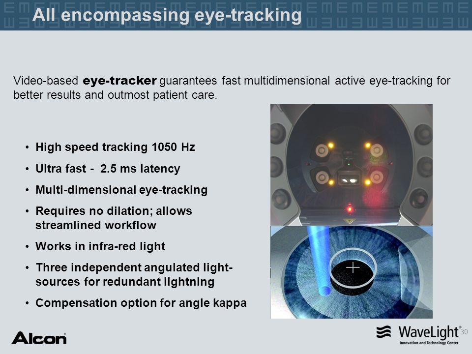 All encompassing eye-tracking 30 High speed tracking 1050 Hz Ultra fast - 2.5 ms latency Multi-dimensional eye-tracking Requires no dilation; allows s