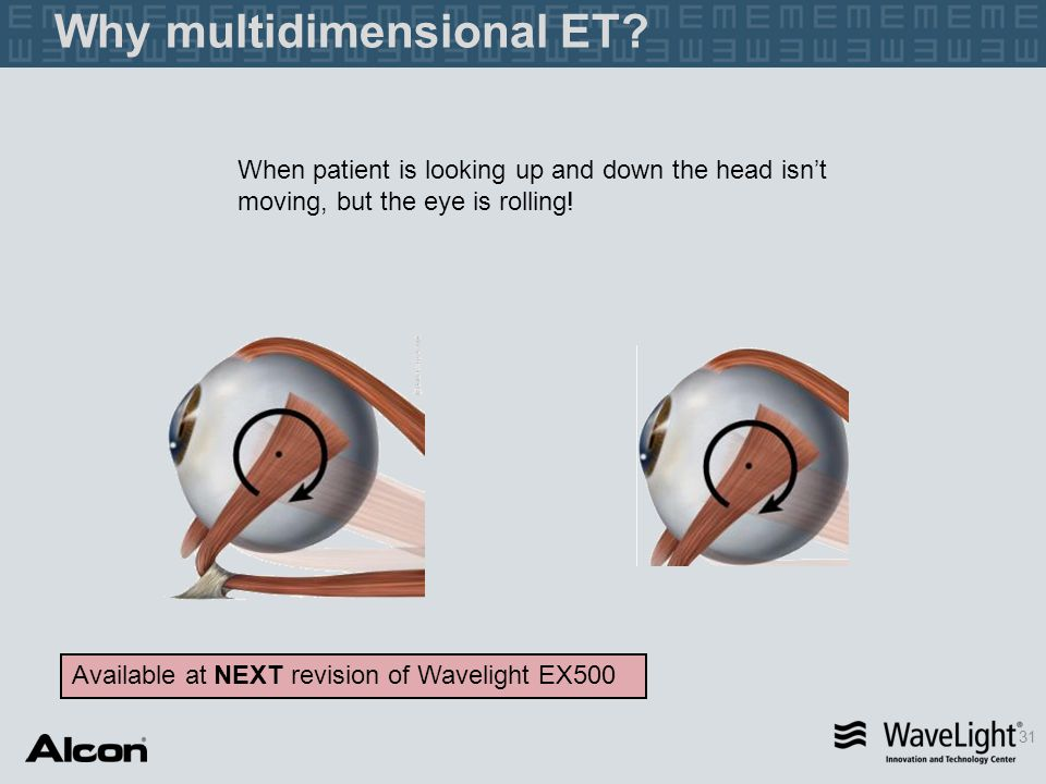 31 When patient is looking up and down the head isn't moving, but the eye is rolling! Why multidimensional ET? Available at NEXT revision of Wavelight