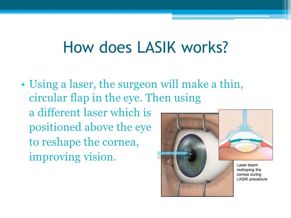 How does LASIK works.Using a laser, the surgeon will make a thin, circular flap in the eye.