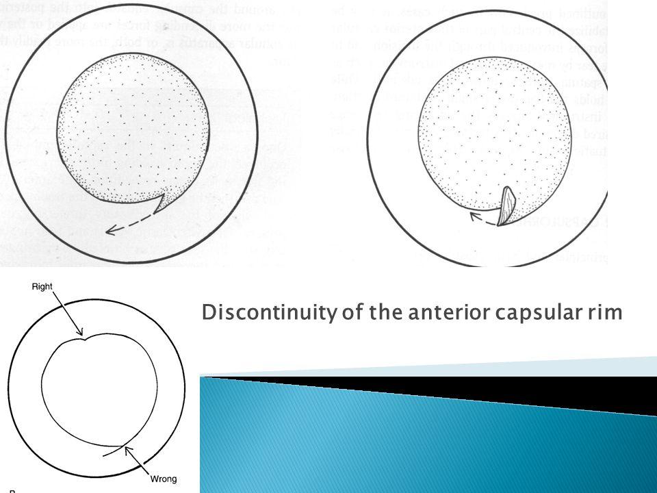 Discontinuity of the anterior capsular rim