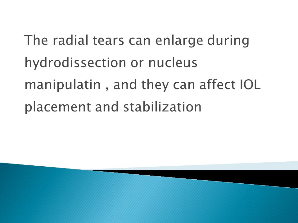 The radial tears can enlarge during hydrodissection or nucleus manipulatin, and they can affect IOL placement and stabilization