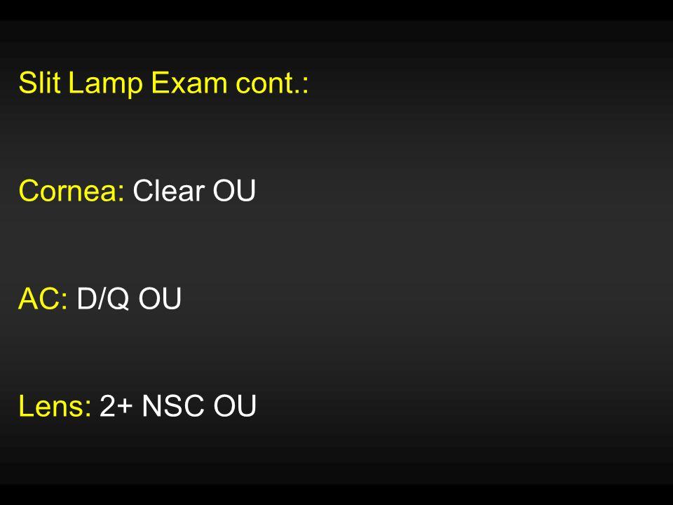 Slit Lamp Exam cont.: Cornea: Clear OU AC: D/Q OU Lens: 2+ NSC OU