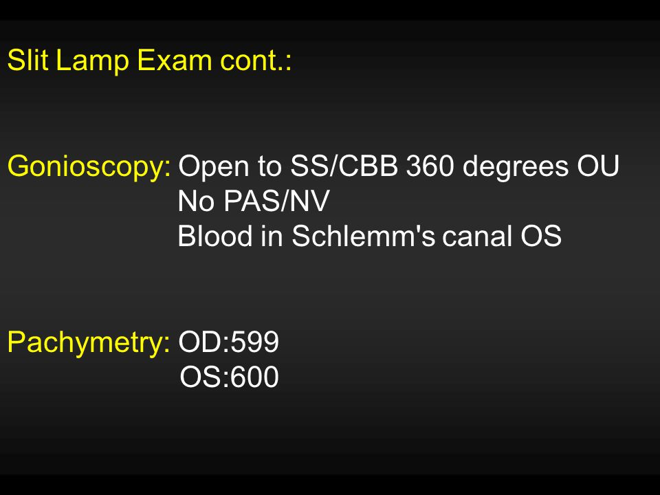 Slit Lamp Exam cont.: Gonioscopy: Open to SS/CBB 360 degrees OU No PAS/NV Blood in Schlemm's canal OS Pachymetry: OD:599 OS:600