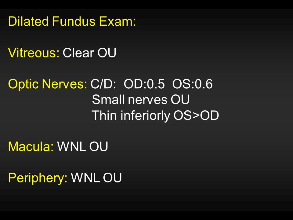 Dilated Fundus Exam: Vitreous: Clear OU Optic Nerves: C/D: OD:0.5 OS:0.6 Small nerves OU Thin inferiorly OS>OD Macula: WNL OU Periphery: WNL OU