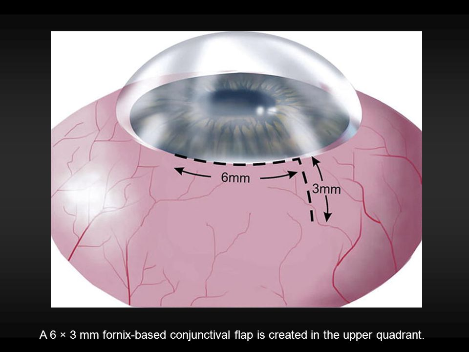 A 6 × 3 mm fornix-based conjunctival flap is created in the upper quadrant.
