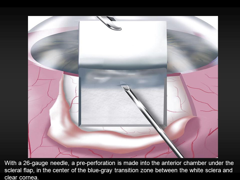 With a 26-gauge needle, a pre-perforation is made into the anterior chamber under the scleral flap, in the center of the blue-gray transition zone bet