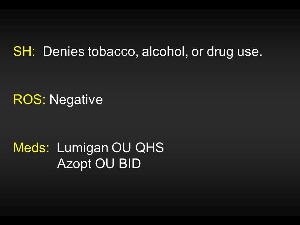 SH: Denies tobacco, alcohol, or drug use. ROS: Negative Meds: Lumigan OU QHS Azopt OU BID