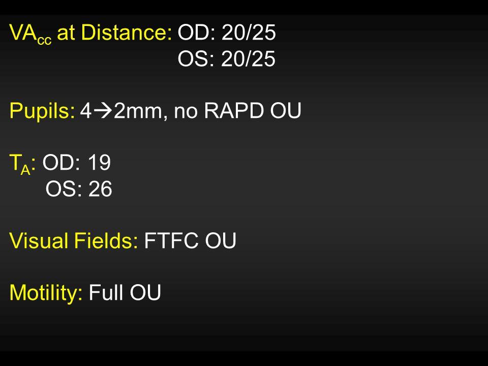 VA cc at Distance: OD: 20/25 OS: 20/25 Pupils: 4  2mm, no RAPD OU T A : OD: 19 OS: 26 Visual Fields: FTFC OU Motility: Full OU