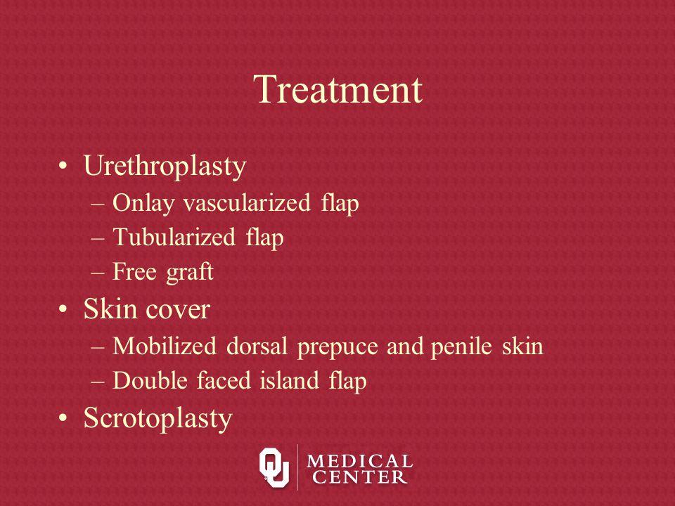 Treatment Urethroplasty –Onlay vascularized flap –Tubularized flap –Free graft Skin cover –Mobilized dorsal prepuce and penile skin –Double faced isla