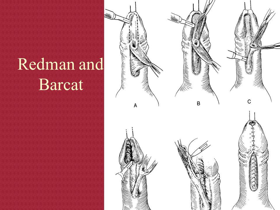 Redman and Barcat
