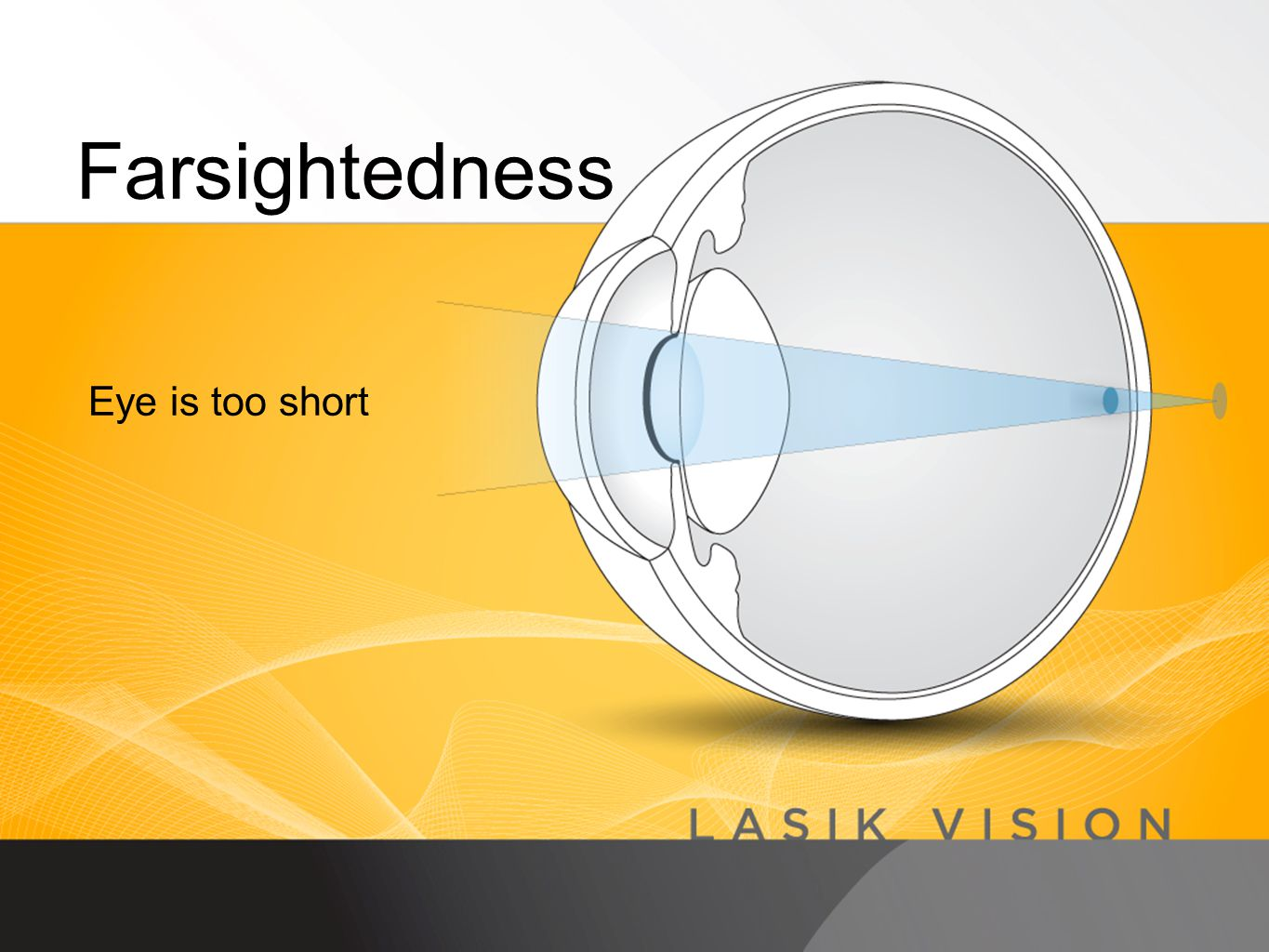 Farsightedness Eye is too short