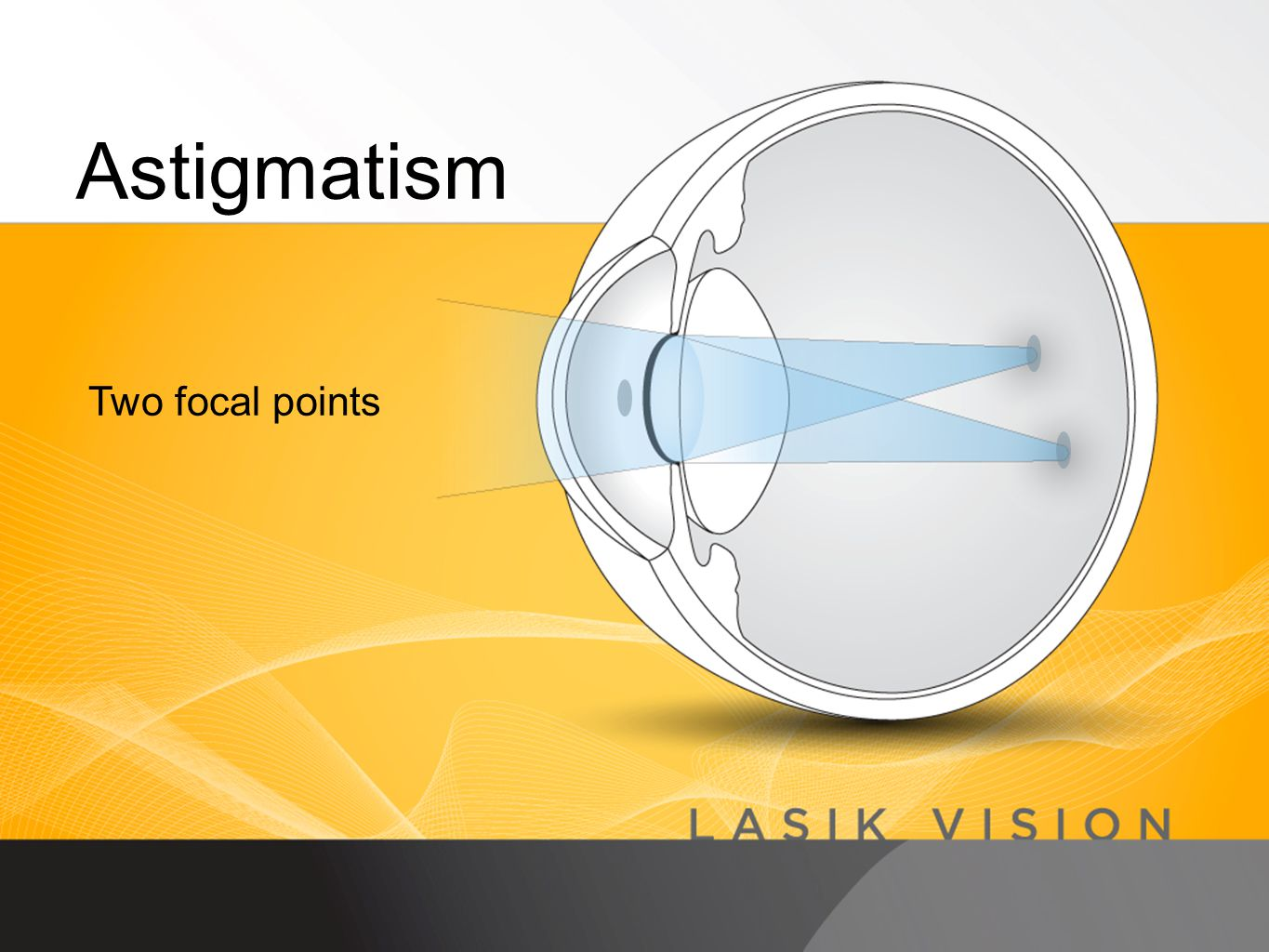 Astigmatism Two focal points