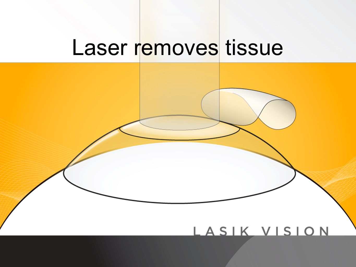 Doctor's Name Laser removes tissue