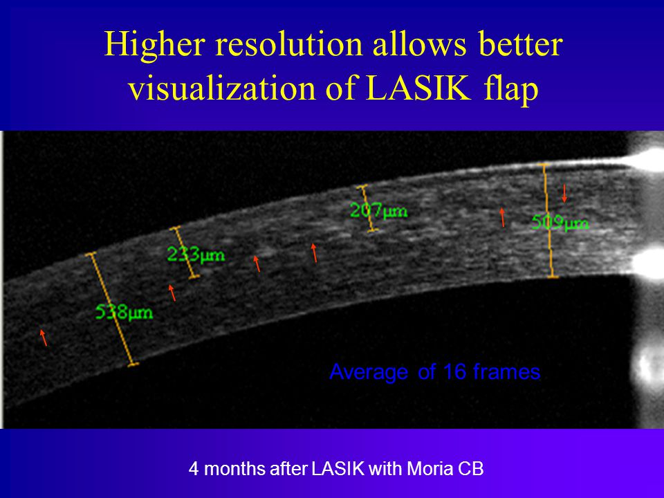 Higher resolution allows better visualization of LASIK flap 4 months after LASIK with Moria CB Average of 16 frames