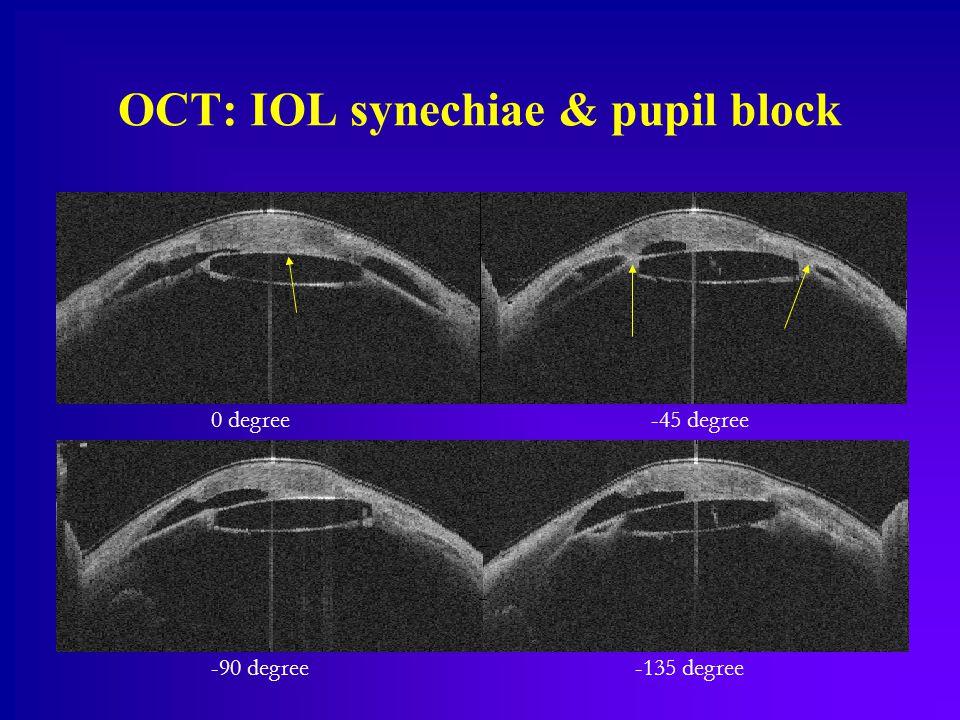 OCT: IOL synechiae & pupil block 0 degree-45 degree -90 degree-135 degree