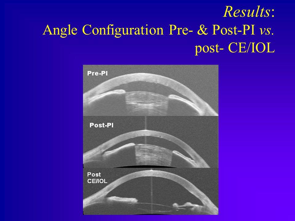 Results: Angle Configuration Pre- & Post-PI vs. post- CE/IOL