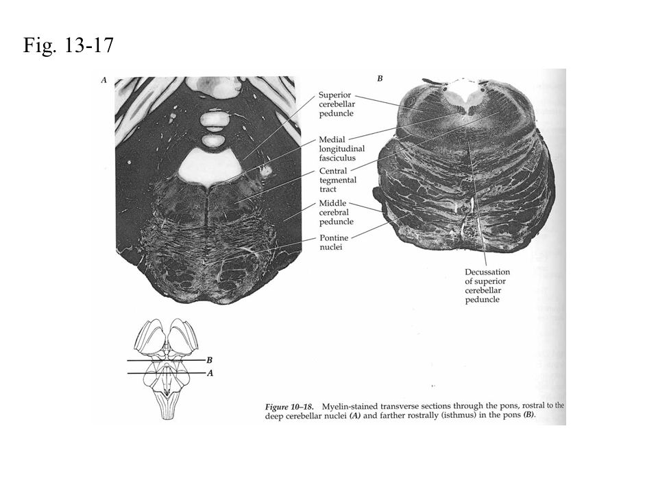 Fig. 13-17