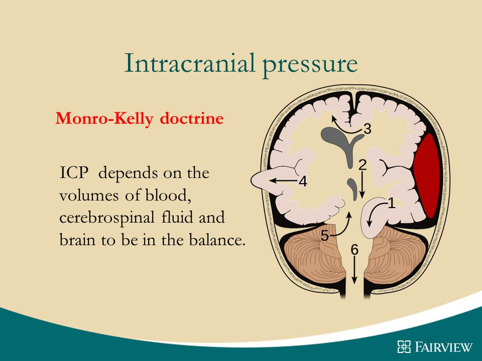 Intracranial pressure Monro-Kelly doctrine ICP depends on the volumes of blood, cerebrospinal fluid and brain to be in the balance.
