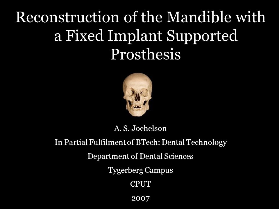 Reconstruction of the Mandible with a Fixed Implant Supported Prosthesis A.