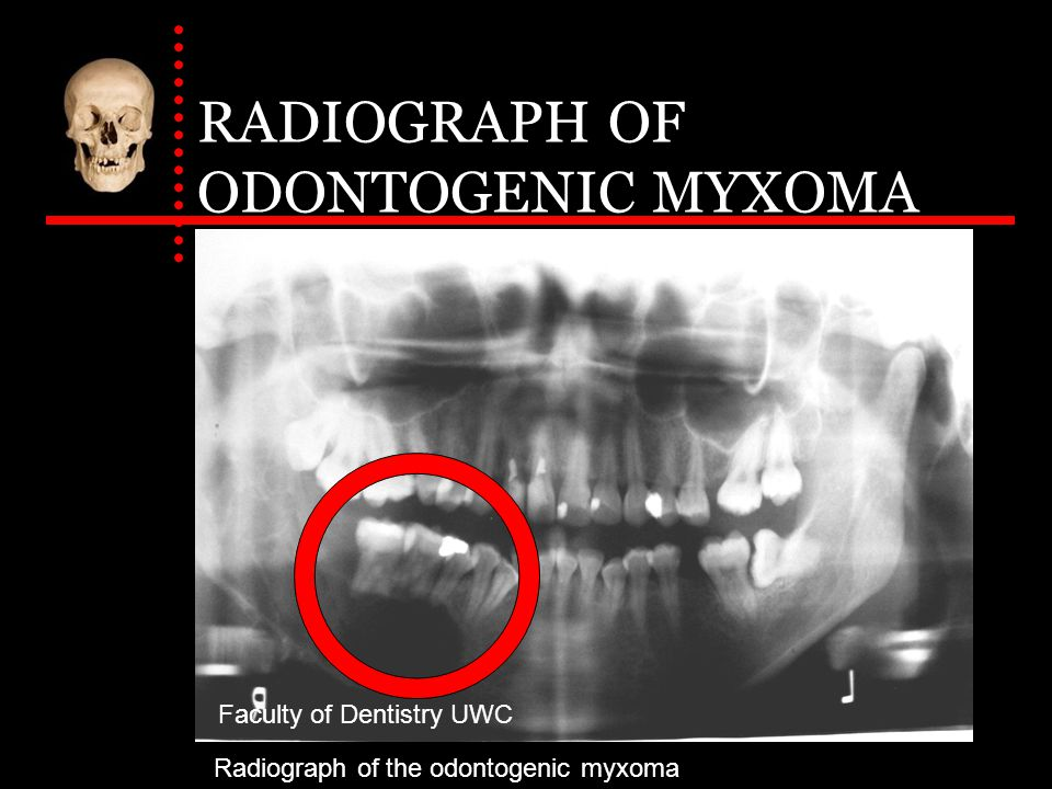 RADIOGRAPH OF ODONTOGENIC MYXOMA Faculty of Dentistry UWC Radiograph of the odontogenic myxoma
