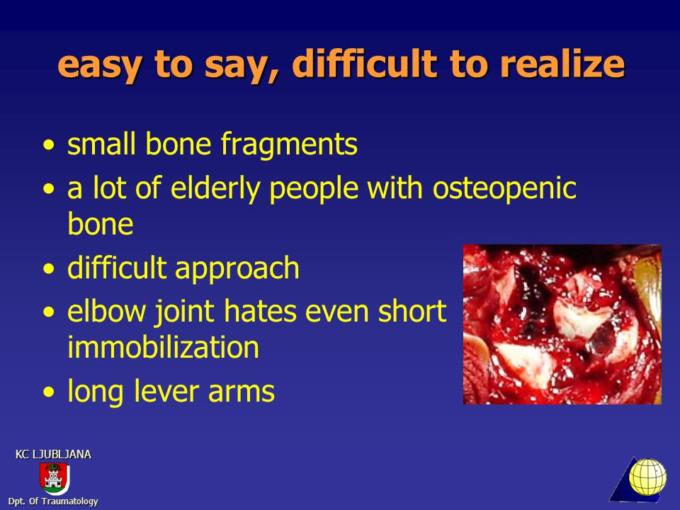 Dpt. Of Traumatology KC LJUBLJANA easy to say, difficult to realize small bone fragments a lot of elderly people with osteopenic bone difficult approa