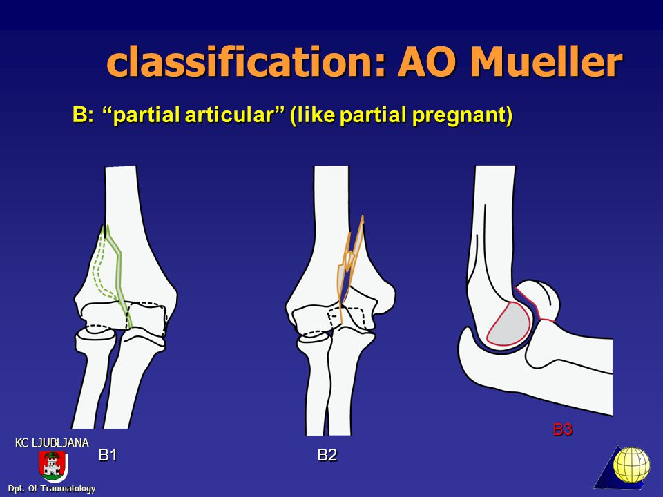 Dpt. Of Traumatology KC LJUBLJANA classification: AO Mueller C1C2C3 C: complete articular