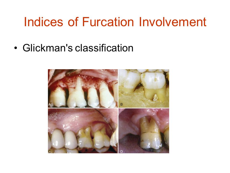 Indices of Furcation Involvement Glickman's classification
