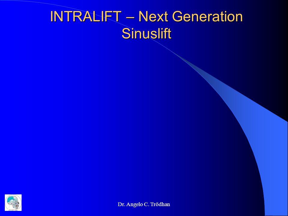 INTRALIFT – Next Generation Sinuslift