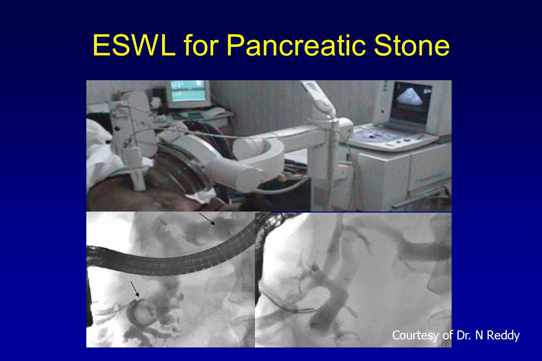 Management of Pancreatic Stones 405 29 primary extraction 20 stenting 356 (88%) Complete clearance 178 (50%) Partial clearance 135 (38%) Failure 43 (12%) ESWL + Endotherapy Reddy DN, Rao GV, Trop Gastroenterol 2001