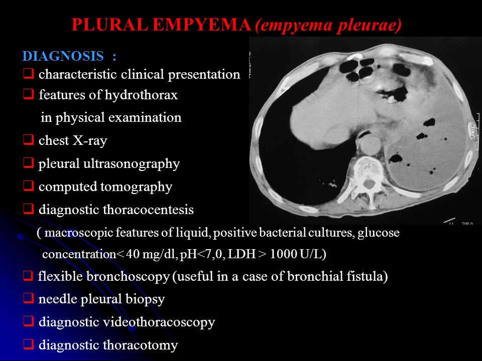 PLURAL EMPYEMA (empyema pleurae) DIAGNOSIS :  characteristic clinical presentation  features of hydrothorax in physical examination  chest X-ray 