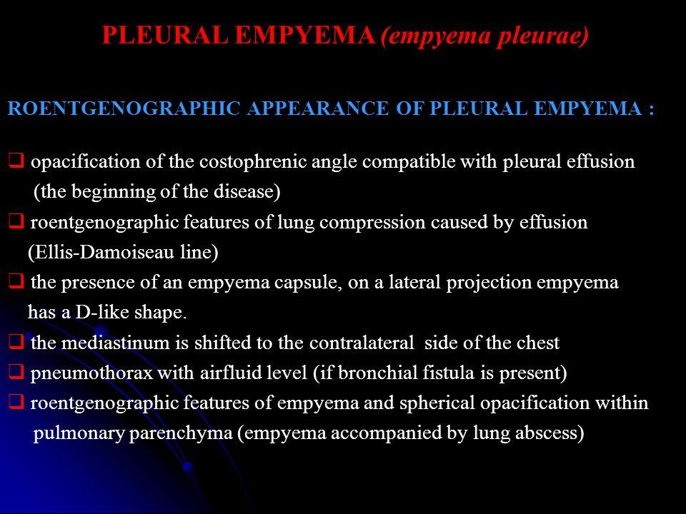 PLEURAL EMPYEMA (empyema pleurae) ROENTGENOGRAPHIC APPEARANCE OF PLEURAL EMPYEMA :  opacification of the costophrenic angle compatible with pleural e