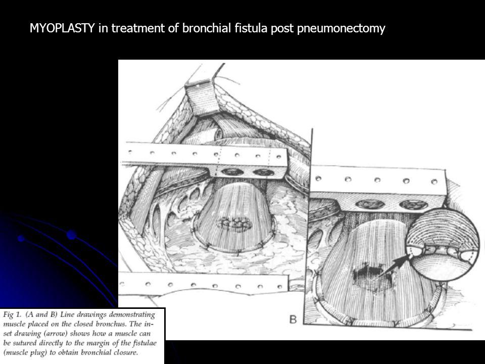 MYOPLASTY in treatment of bronchial fistula post pneumonectomy