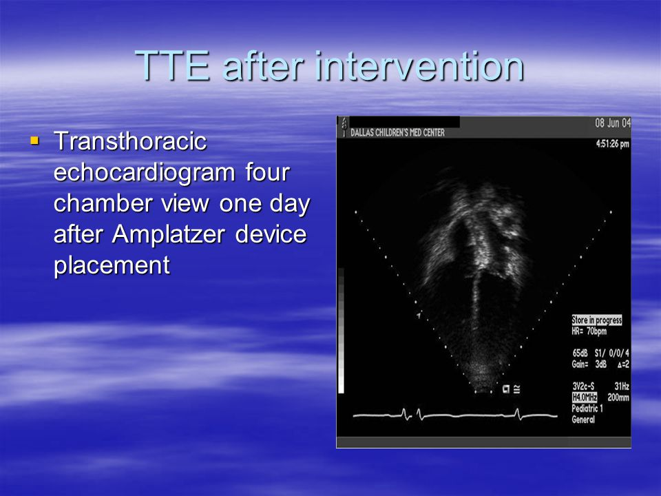 TTE after intervention  Transthoracic echocardiogram four chamber view one day after Amplatzer device placement