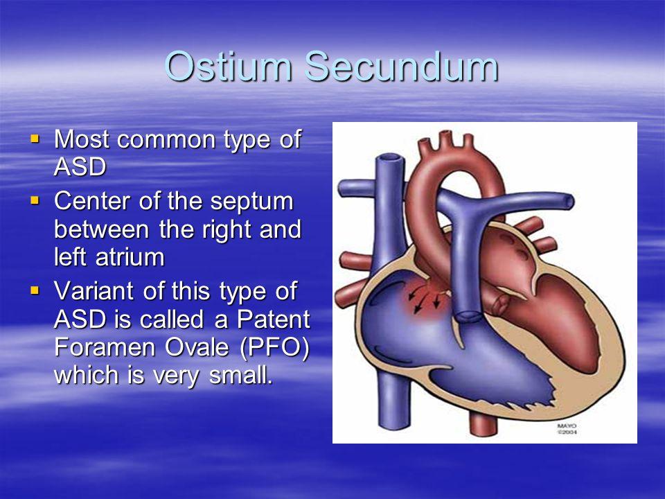 Ostium Primum  Next most common type  Located in the lower portion of the atrial septum.