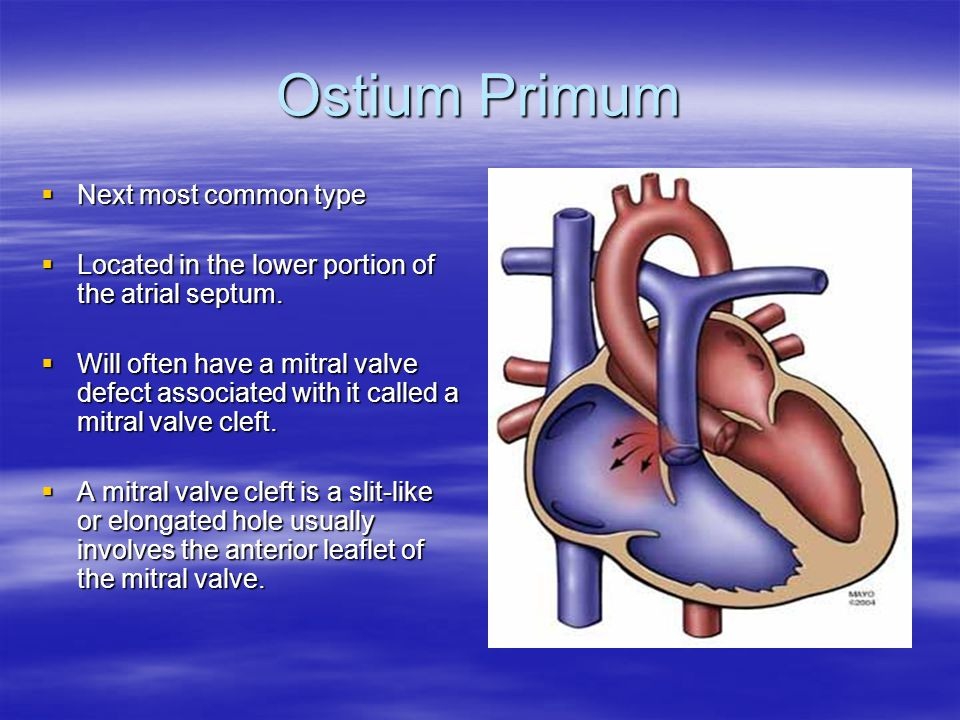 Ostium Primum  Next most common type  Located in the lower portion of the atrial septum.  Will often have a mitral valve defect associated with it