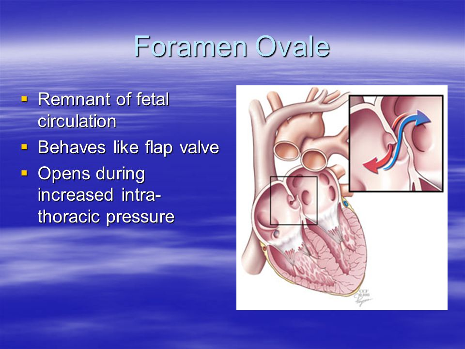 Flamm Formula  Average Oxygen Content in Chambers proximal to the Shunt  Method to calculate Mixed Venous Oxygen content  Need to factor in Contribution from IVC and SVC which is not equal  Flamm Equation: 3xSVC Oxygen Content + IVC Oxygen Content ______________________________________4