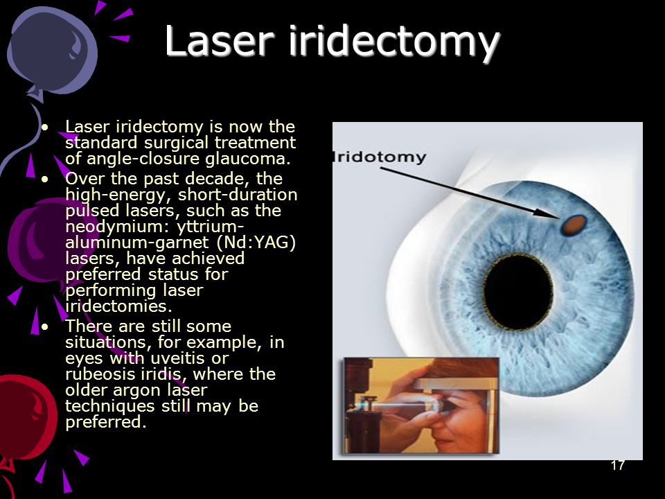 Laser iridectomy Laser iridectomy is now the standard surgical treatment of angle-closure glaucoma.